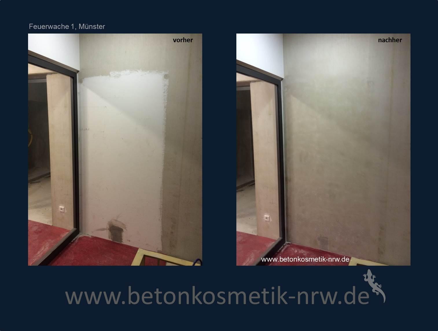 pigmentflecken lasern kassel berlin. Black Bedroom Furniture Sets. Home Design Ideas